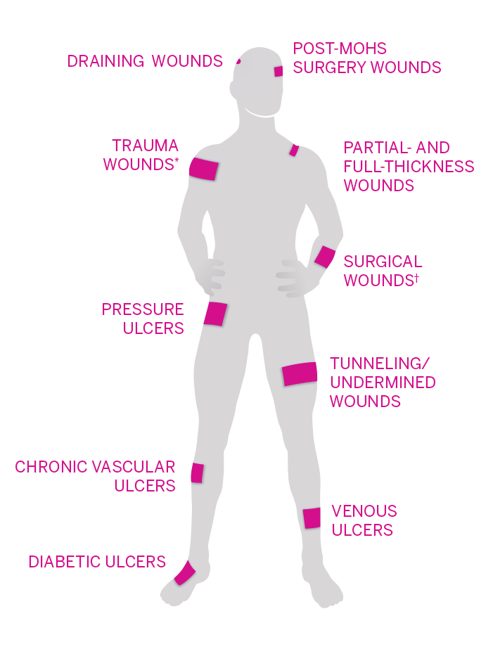 The various wound types PuraPly AM can help heal